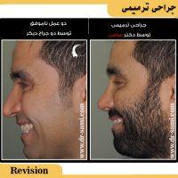 عمل بینی ترمیمی توسط دکتر سامی - بهترین جراح بینی ترمیمی تهران