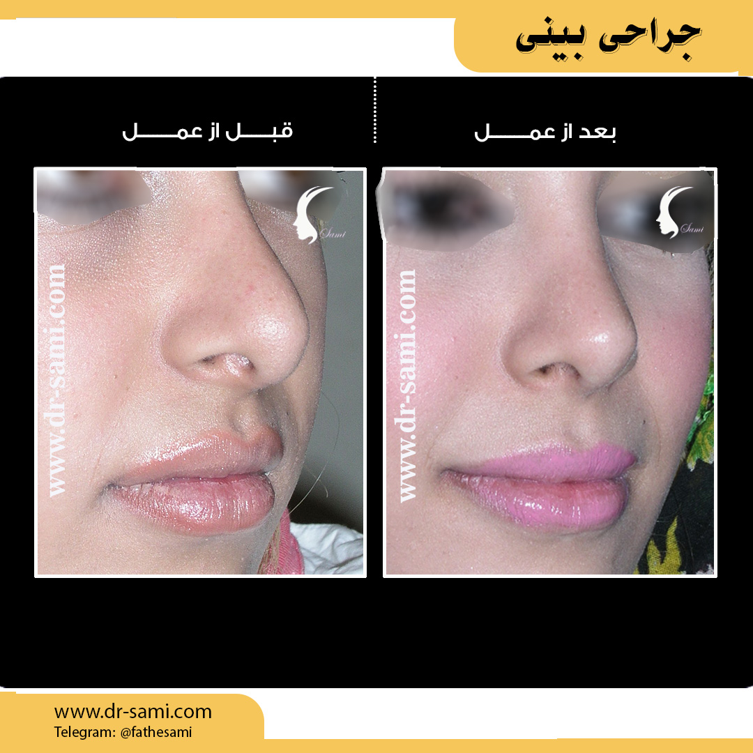 عمل بینی - دکتر سامی | بهترین جراح بینی