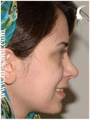 نمونه نمونه کارهای جراحی بینی کد t1_2