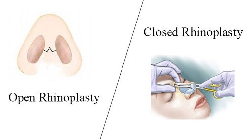 تکنیک های نوین جراحی بینی