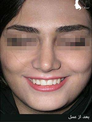نمونه نمونه کارهای جراحی بینی کد n108_2