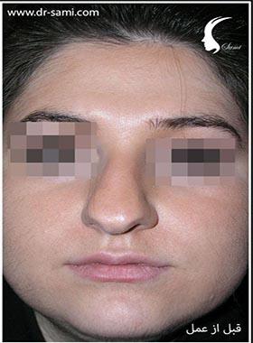 نمونه نمونه کارهای جراحی بینی کد n109_1