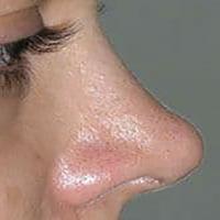 انواع بینی ترمیمی - جراحی بینی ترمیمی ( جراحی ثانویه ) - دکتر سامی