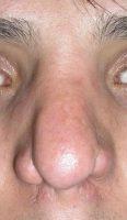 بینی ترمیمی نوع فاجعه 1