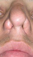 بینی ترمیمی نوع فاجعه 2
