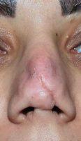 بینی ترمیمی نوع فاجعه 3